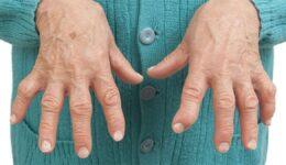 Romatoid Artrit Neden Olur?  Tanısı Nasıl Konur,  Belirtileri?