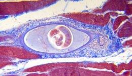 Trichinella Spiralis Nedir? Nasıl Bulaşır, Belirtileri Nelerdir?