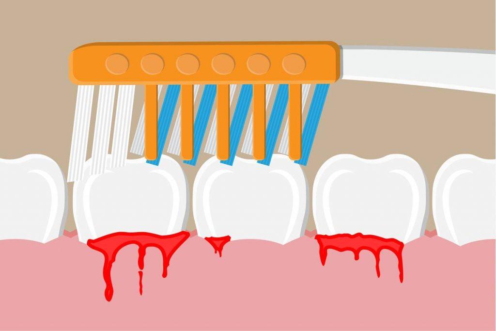 Ağız İçerisindeki Tehlike Diş Eti Kanaması