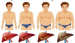 Karaciğer Yağlanmasında Merak Edilen Konular