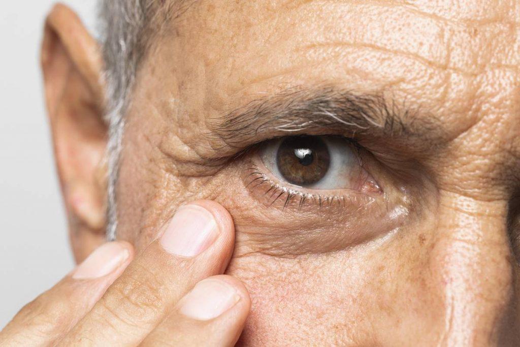 Göz Seğirmesi Nasıl Durdurulur?
