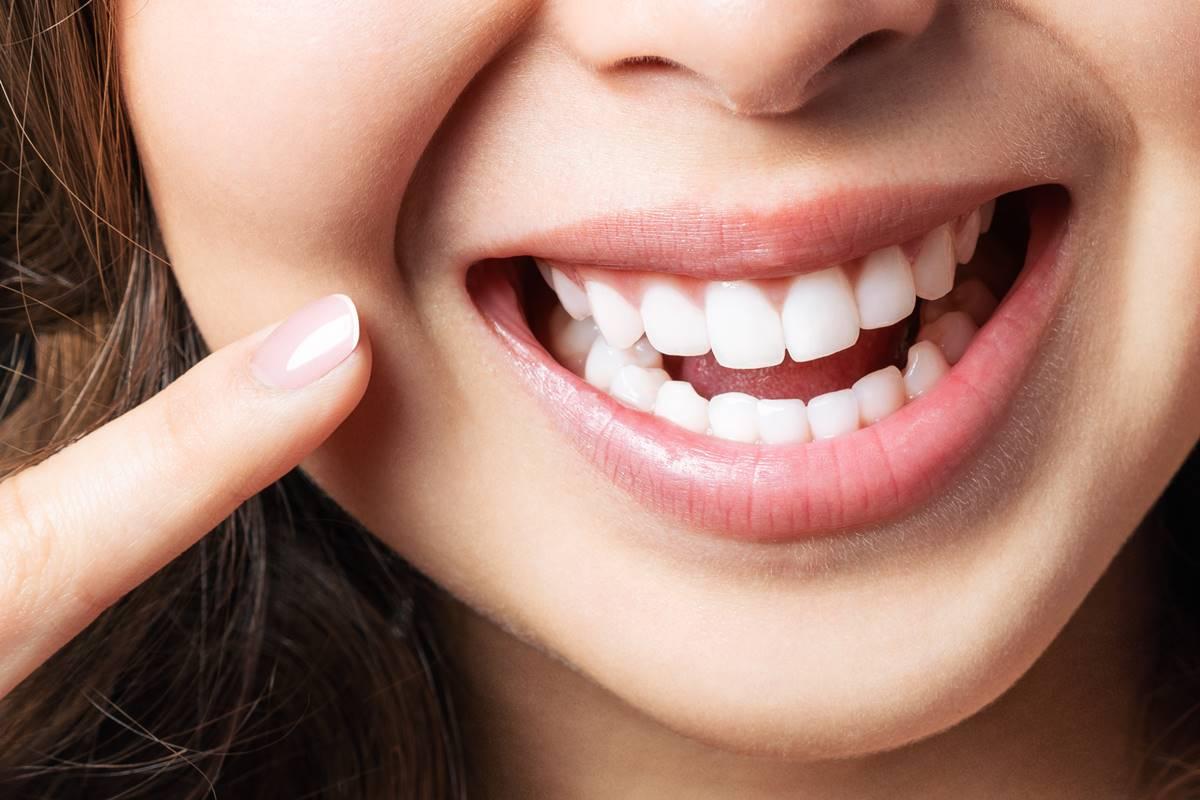 Diş Taşı Nasıl Temizlenir? Zararlı mıdır? Temizleme Fiyatları