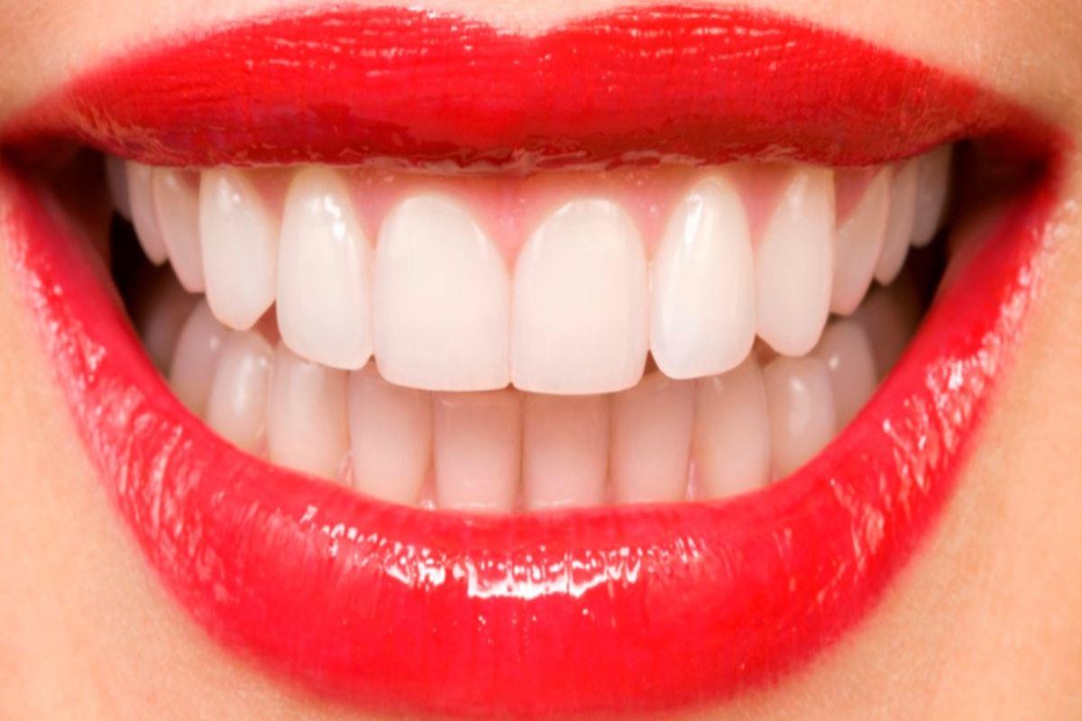 Diş ile İlgili Bilmeceler